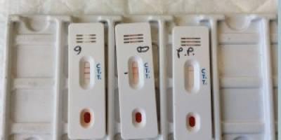 Test sierologici per i lavoratori
